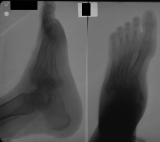 early collapse of longitudinal arch: subluxation of 1st proximal phalangeal joint