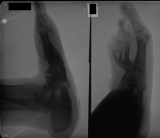 severe collapse of longitudinal and transverse arches: destruction of outer tarsals, metatarsals and phalanges