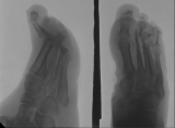 severe concentric diaphyseal remodelling of metatarsals 2-5: upward subluxation of and destruction of metatarsal/phalangeal joints:destruction of most intermediate and distal phalanges.