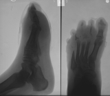 severe concentric diaphyseal remodelling of metatarsals 2,3,5 with destruction of distal ends: destruction most phalanges on rays 2-5: thickening and shortening of foot.