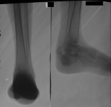 collapse of calcaneus with shortening of the foot from the rear