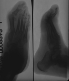 concentric diaphyseal remodelling of proximal phalanges 2-5: destruction of intermediate and distal phalanges 2-5: subluxation and supero-lateral displacement of metarsal 1 and its phalanges