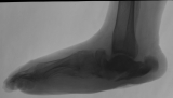 collapse of longitudinal arch: boat-shaped foot: ulceration of heel and destruction of calcaneus