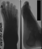 destruction of metatarsals 4,5 and their phalanges: destruction of distal and intermediate phalanges of rays 1,2,3. Large enthesophyte at attachment of plantar ligament to calcaneus.