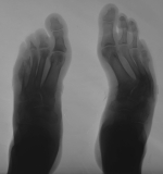 destruction of metatarsals 4,5 and their phalanges: Proximal ends of 1st metatarsals displaced laterally leading to serpentine distortion of both feet.