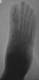concentric diaphyseal remodelling of all proximal phalanges: destruction of intermediate and distal phalanges