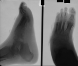 Destruction of metarsal 5 and all its phalanges: destruction and thickening of foot sole: Large enthesophyte at attachment of plantar ligament to calcaneus.