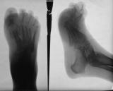 concentric diaphyseal remodelling of all metatarsals with destruction of distal ends: collapse of longitudinal arch, with upward fanning of proximal phalanges