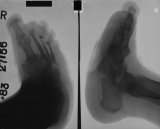 complete collapse and reversal of longitudinal arch: concentric diaphyseal remodelling and extreme thinning of metatarsals 2-4: destruction of metatarsal 5: compression and fusion of tarsals: most phalanges eroded
