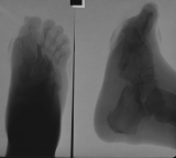 Severe concentric diaphyseal remodelling of metatarsals and phalanges: collapse of longitudinal arch