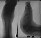 Destruction of calcaneus: collapse of longitudinal arch: rounded convex sole of foot