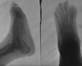 concentric diaphyseal remodelling proximal phalanges