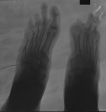 loss of phalanges and concentric diaphyseal remodelling of metatarsals