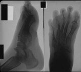 Collapse of longitudinal arch: concentric diaphyseal remodelling of metatarsal 5 and proximal phalanges of rays 1, 5: subluxation of tibio/talar joint