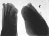 destruction of most phalanges and metatarsals: concentric diaphyseal remodelling of the four remaining metatarsals: both halluces resorbed