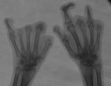 loss of most phalanges and clawing of three remaining fingers: diffuse destruction of distal ends of all metacarpals
