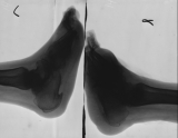 right foot boat-shaped with destruction of most metatarsals and phalanges: left foot earlier stage of same process: plaques of bone on calcanei
