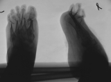 severe concentric diaphyseal remodelling of metatarsals and phalanges: contraction deformation and elevation of all toes
