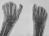 loss of all finger phalanges: destruction of thumb phalanges: concentric diaphyseal remodelling of 7 metacarpals: fusion of carpals