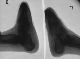 loss of all phalanges: collapse  of longitudinal arch: compaction and fusion of tarsals