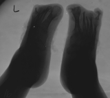 destruction of most phalanges: concentric diaphyseal remodelling of all metatarsals