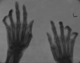 claw hands, with some joint subluxation: worst on left hand