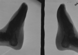 loss and absorbtion of phalanges:  thickening of soles: