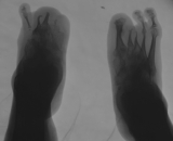 destruction or loss of tarsals: concentric diaphyseal remodelling metatarsals: fusion of tarsals
