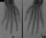 early erosion of  distal phalanges