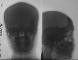 loss of anterior nasal spine: collapse of middle third of face