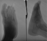 destruction, collapse and fusion of tarsals: concentric diaphyseal remodelling of metatarsals with extreme thinning of MT3,4