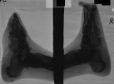 destruction, collapse and fusion of tarsals: destruction of distal ends of metatarsals and most phalanges