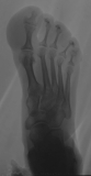Medial enlargment of soft tissues of Hallux: concentric diaphyseal remodelling proximal phalanges and atrophy of their intermediate and distal extensions