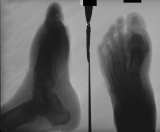 fusion and bony proliferation around 1st metatarso-phalangeal joint: contaction deformation and diffuse atrophy of other phalanges: thickening of sole