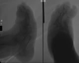 shortened and rounded foot with collapse and fusion of the tarsals: concentric diaphyseal remodelling and twisting of remaining metatarsals: atrophy or complete loss of most phalanges: enthesophyte formation on plantar aspect of calcaneus