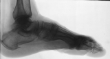 horizontal spur on lower surface of calcaneus