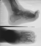 Severe destruction of all phalanges and distal aspects of metatarsals, with elevation of the toes and spicular outgrowths on MT1