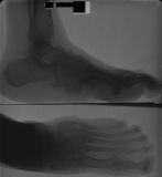 collapse of longitudinal arch: fusion of tarsals: concentric diaphyseal remodelling and erosion of metatarsals and phalanges