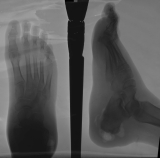 multiple radiolucent voids in soft tissues of heel: spiculated and irregular Achilles tendon enthesophytes: swelling of sole of foot