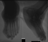 collapse of longitudinal arch: compression and extrusion of tarsals