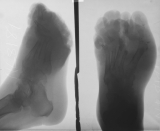 Gross thickening and ulceration of soft tissues: destruction of most phalanges and distal ends of the metatarsals
