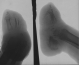 boat-shaped foot:  diffuse atrophy of all tarsals, even the calcaneus