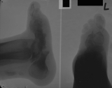 collapse of longitudinal arch: crushing and destruction of tarsals: destruction of phalanges: calcification of Achilles tendon