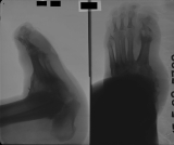 severe boat-shaped foot: destruction of phalanges: contraction deformation of whole foot with fusion of tarsals