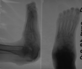 collapse of longitudinal arch: contraction deformation of toes: separation of Achilles attachment
