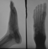 collapse of longitudinal arch with sagging of tarsals: flattening of calcaneus