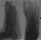 contraction deformity of toes: concentric diaphyseal remodelling and diffuse atrophy of distal ends of metatarsi and the attached phalanges