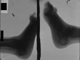 collapse of longitudinal arch: contraction deformation and elevation of toes: destruction of lateral phalanges