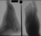 Thickening of tissues of mid-foot: midfoot collapse