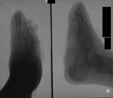 Destruction of all phalanges and distal ends of metatarsals: Deep ulcer of sole, destroying tarsals